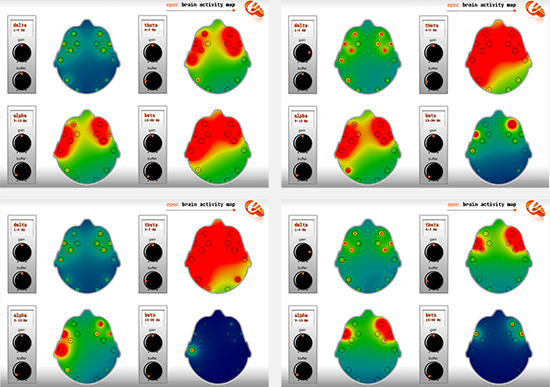 Brain activity map